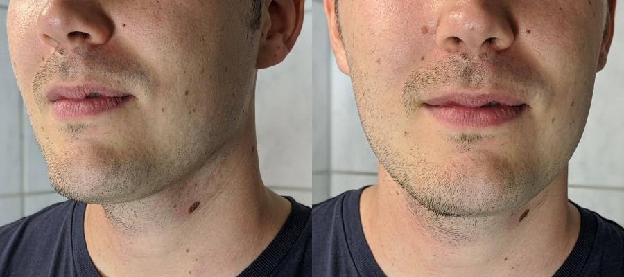 Philips series 9000 Prestige Rasierer Test: Links unrasiert und rechts rasiert