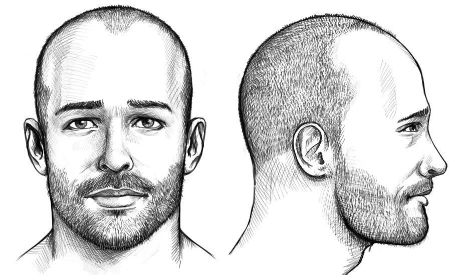 Mit halbglatze männerfrisuren Frisuren Bei